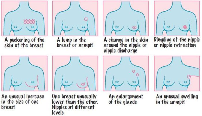 Warning Signs Of Breast Cancer