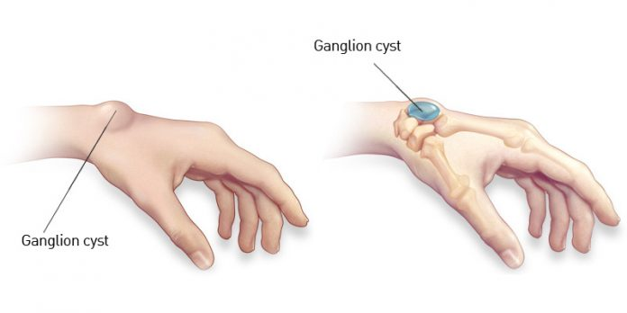 Damages of the Ganglion cyst in the Hand